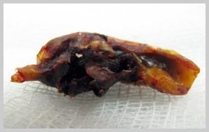 атеросклератическая бляшка извлечённая из артерии