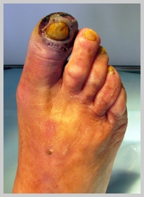 некроз большого пальца ноги