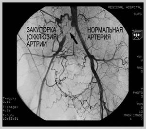 Сосудистый атеросклероз