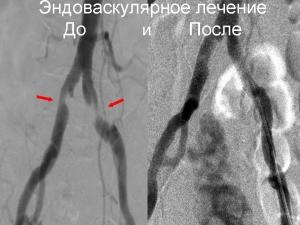 Эндоваскулярное лечение. До и после.