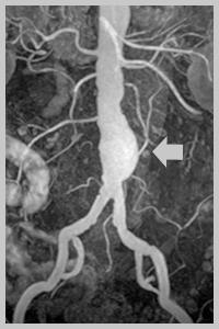 аневризма брюшной аорты на УЗИ
