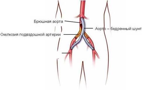 аорто-бедренное шунтирование