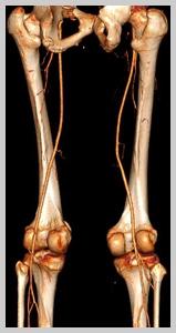 артерии нижних конечностей