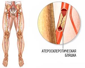 Лечение атеросклероза нижних конечностей лекарствами, мазями, народными средствами, диетой и ЛФК