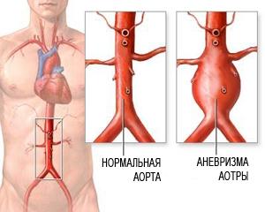 Признаки аневризмы брюшной аорты у женщин