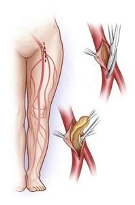 протезирование артерии