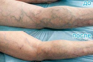 лечение варикозной болезни методом микропенной склеротерапии