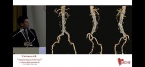КТ ангиографии аорты