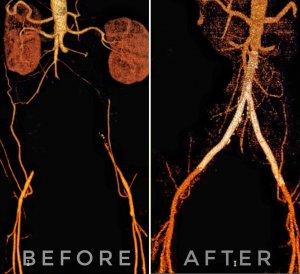 Случай успешного лечения подпочечной окклюзии аорты у пациента с высоким анестезиологическим риском